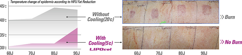 contact cooling - lipocel