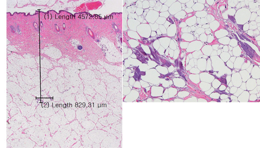 Histology - ultracel
